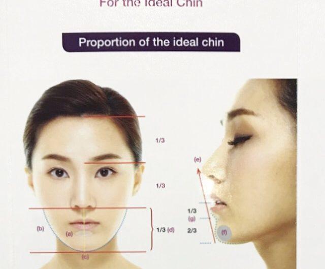 Chin Filler – Kellyn Shiau
