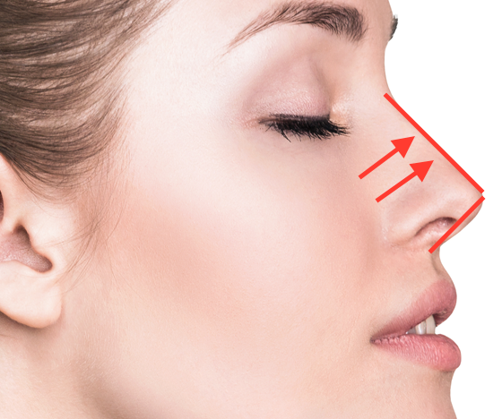 Nose Threadlift in Singapore  Non- surgical Nose lift  What it can